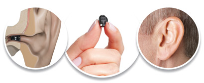 invisible or IIC digital hearing aid